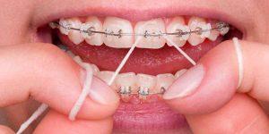 Dental Braces Worth the Effort